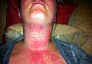 Аллергия на алкоголь что делать