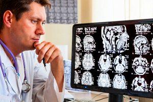 Влияние курения на мозг человека