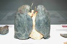 Как очистить лёгкие после курения?