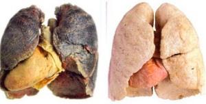 Лёгкие курящего и не курящего человека фото