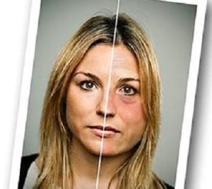 признаки женского алкоголизма фото